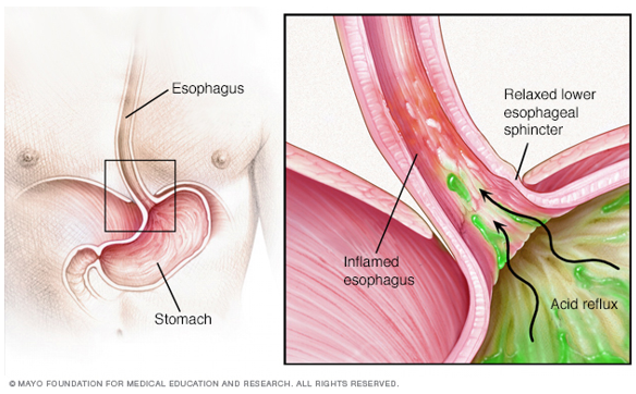 mayo Heartburn graphic.png